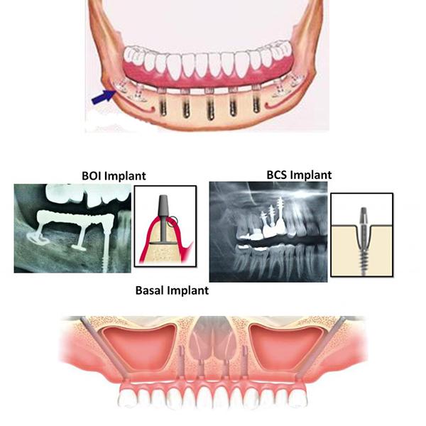 implantologia basal