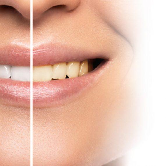 Problemas esmalte dental y soluciones